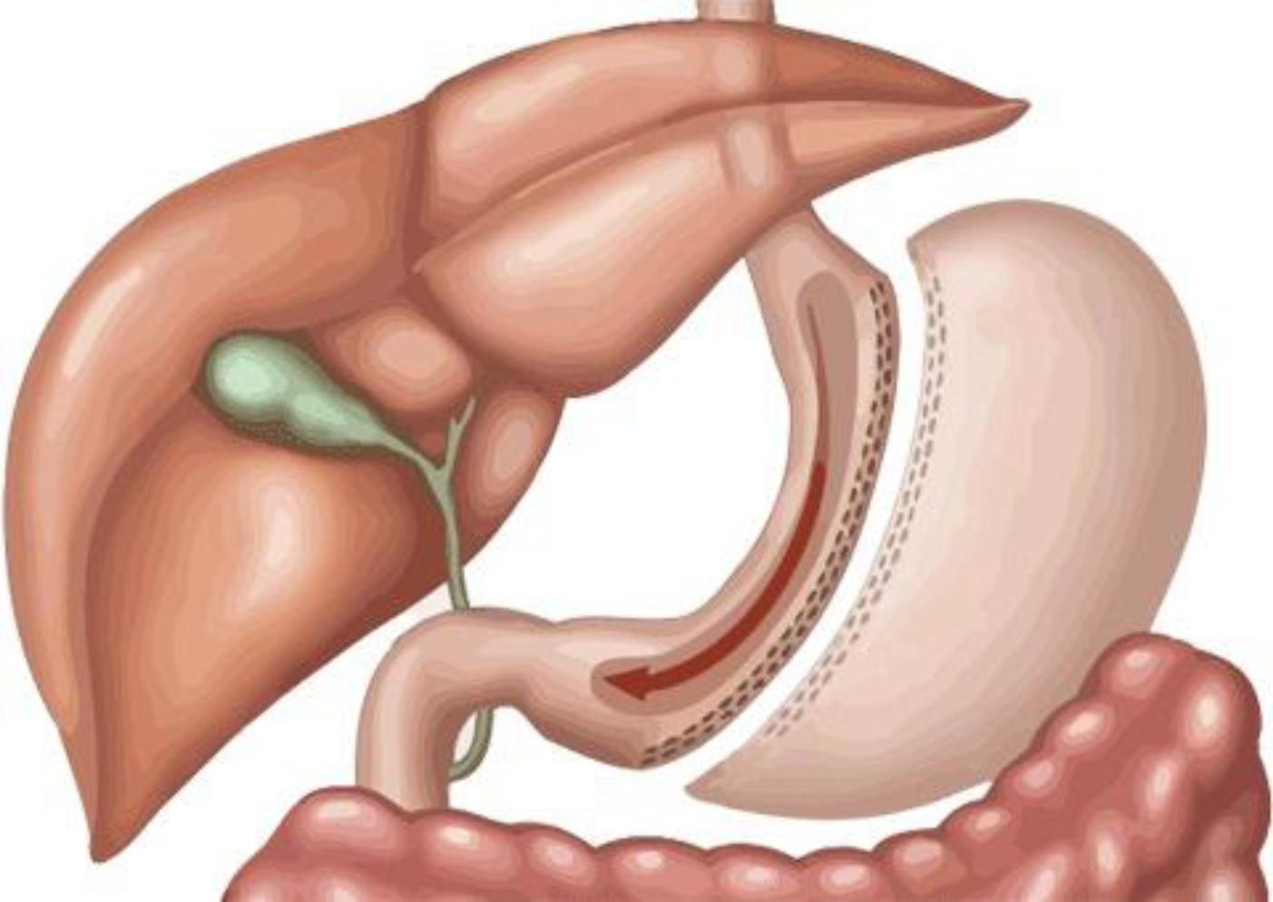 Cirugía de manga gástrica en Naucalpan